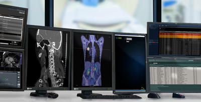 Radiology Workstations